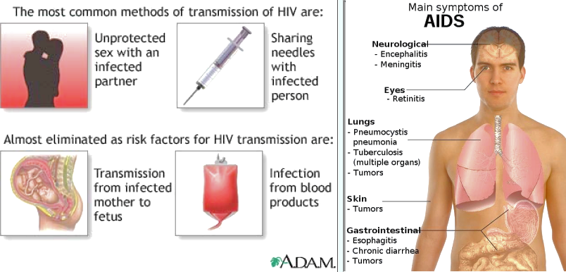 the acquired immune deficiency syndrome essay Learn more about acquired immune deficiency syndrome risk download as pdf individual interventions  the essay contests were found to increase condom use but not decrease sexual activity another south african intervention, the image (intervention with microfinance for aids and gender equity) project, while not specifically designed for.