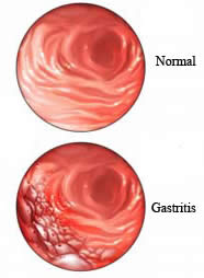 gastritis lifestyle change and medications Chronic gastritis is the term used for  use our handy tool to help determine whether your pet is at an ideal weight or needs a change in diet and lifestyle.