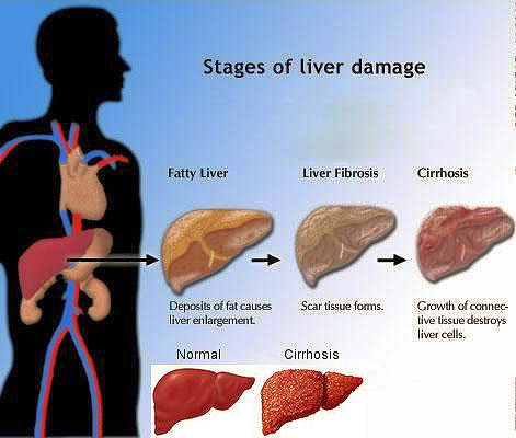 Cirrhosis Fatigue loss of appetite yellowing/itchy skin swelling in ankles/legs/abdomen blood in the stool fever brownish urine light colored stools ... & Medical Science islam-shia.org