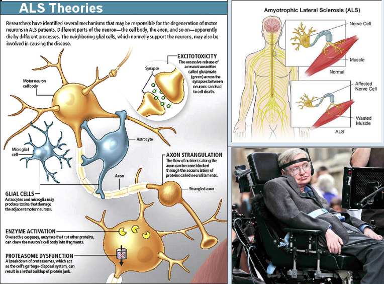 an introduction to the issue of amyotrophic lateral sclerosis Identifying the primary site of pathogenesis in amyotrophic lateral sclerosis – vulnerability of lower motor neurons to proximal excitotoxicity.