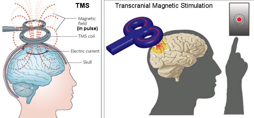 TMS Experiment