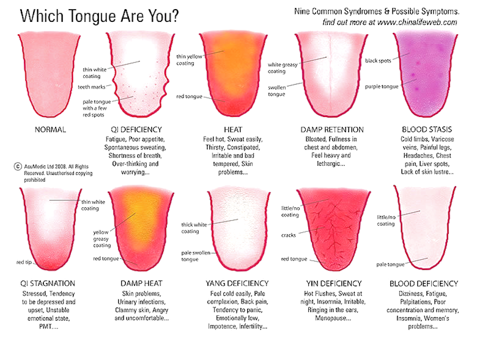Tongue Symptoms