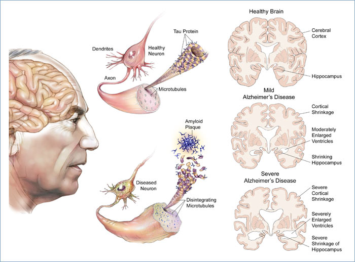alzheimers disease factors influencing its development symptoms and treatment Alzheimers disease  symptoms and treatment of alzheimer's disease  it will explore its etiology, pathophysiology, risk factors and.